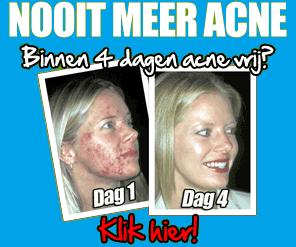 nooit-meer-acne.png